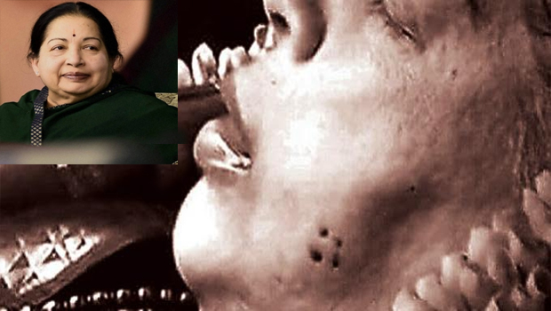 what is that hole on jayalalitha cheek