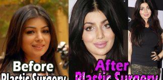 ayesha takia Plastic Surgery